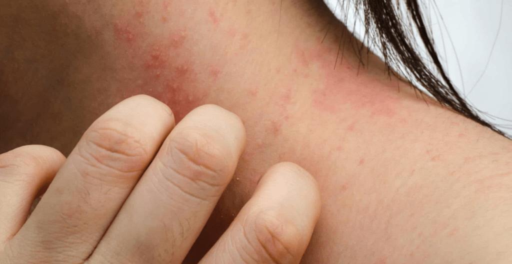 alergia en el cuello