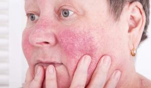 cultivo de la papa principales enfermedades y plagas
