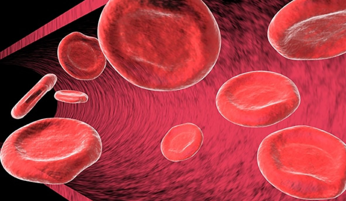 El hierro produce hemoglobina en la sangre para evitar la anemia