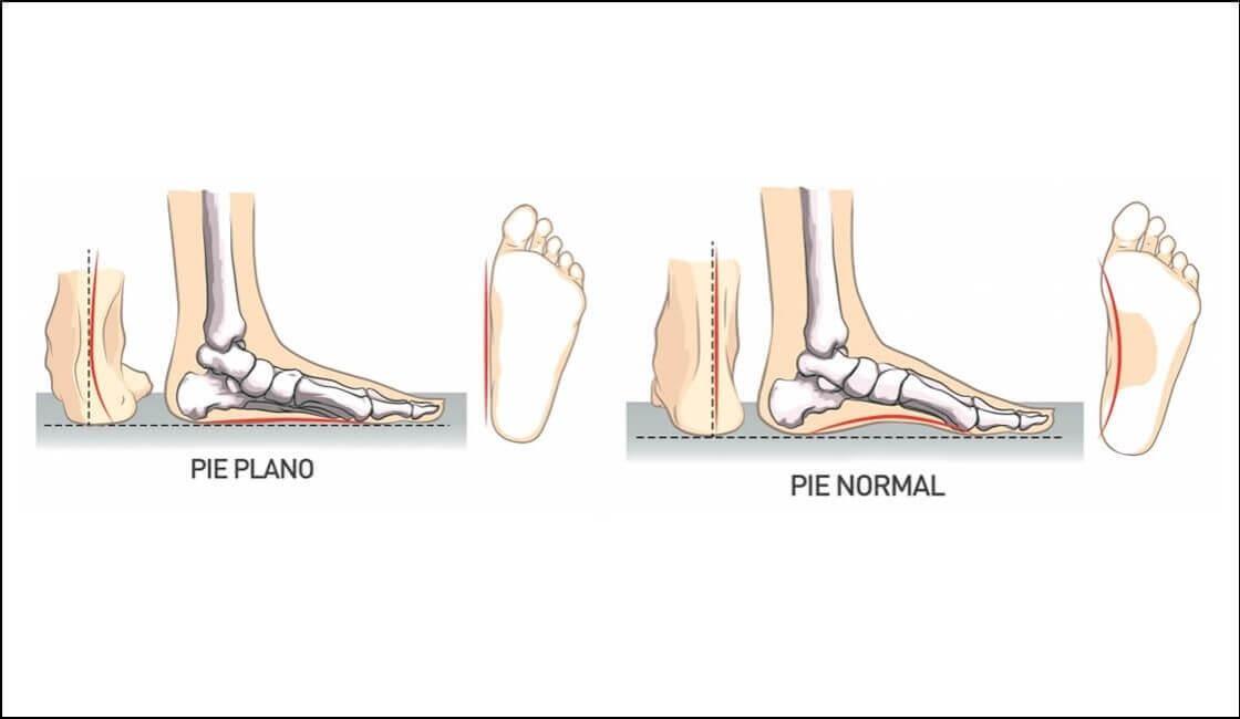 pie plano y pie normal