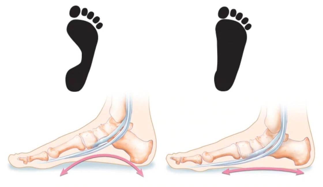 imagen de como es un pie plano