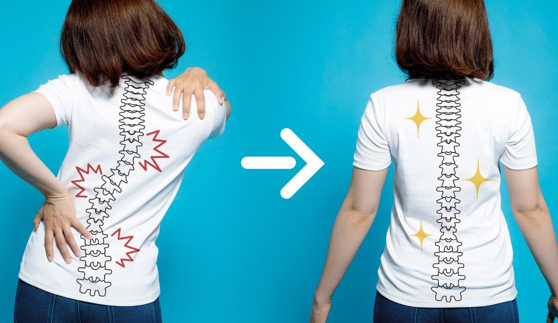 mujer con mala postura vs. mujer con buena postura para reducir el dolor de espalda